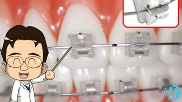 牙医讲自锁托槽矫正是啥样的