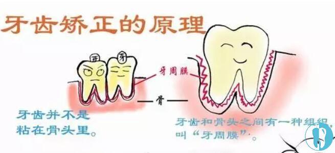 半口牙齿矫正更省钱吗