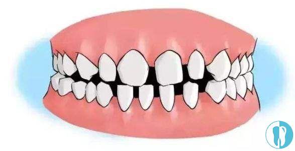 失败的牙齿矫正