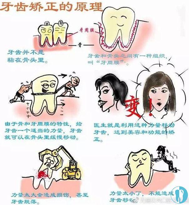 牙齿矫正的原理是什么