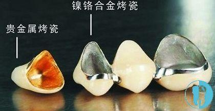 烤瓷牙的不同材质