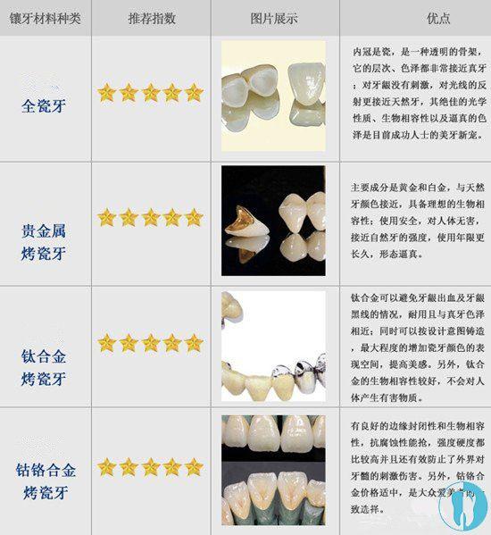 各种假牙材料的优点