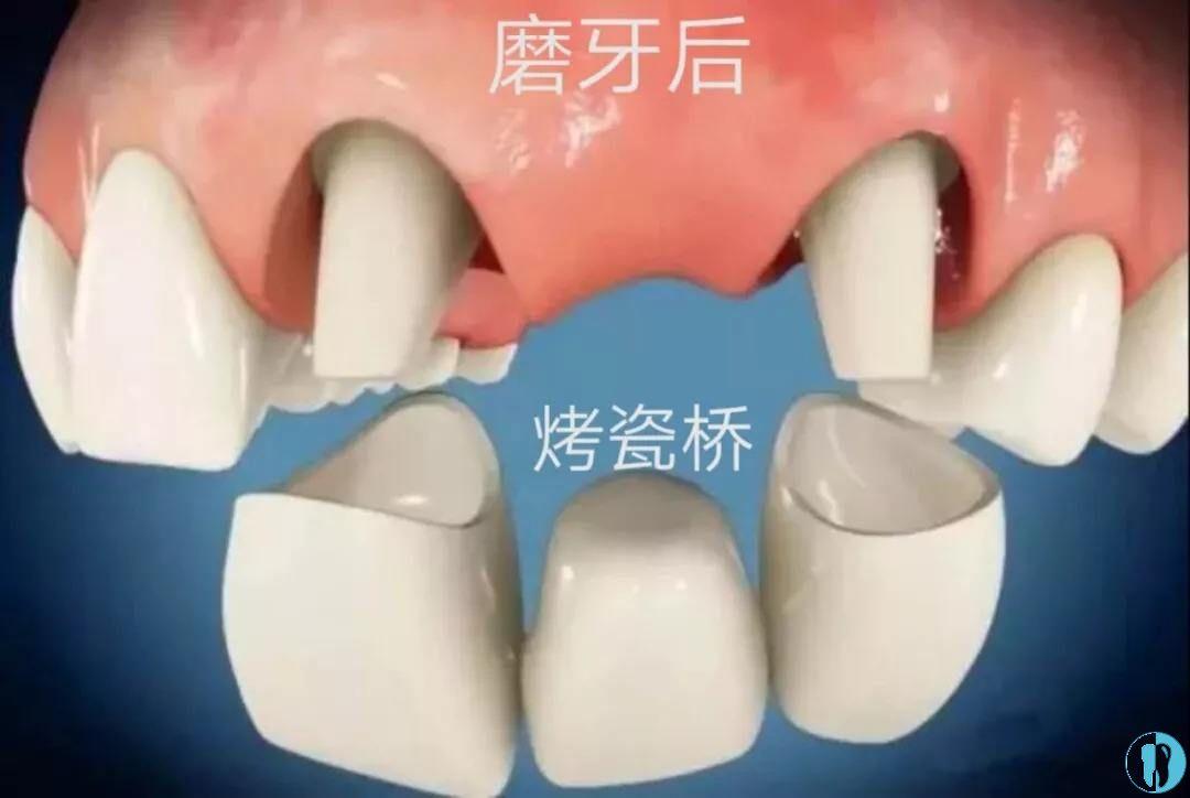 带固定假牙示意图