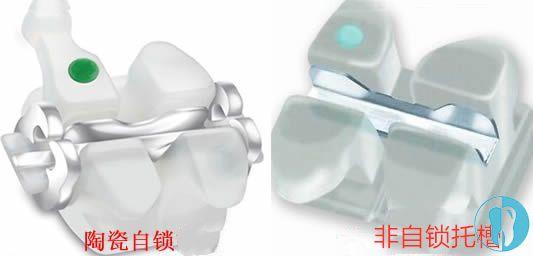 牙套自锁和非自锁图片_一张对比图就把陶瓷自锁和非自锁的区别安排的明明白白了 ...