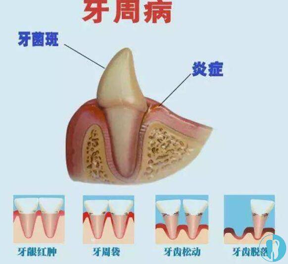 牙周病的发展过程