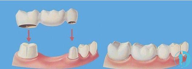 镶牙的前后对比