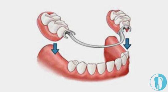 镶牙中的可活动假牙