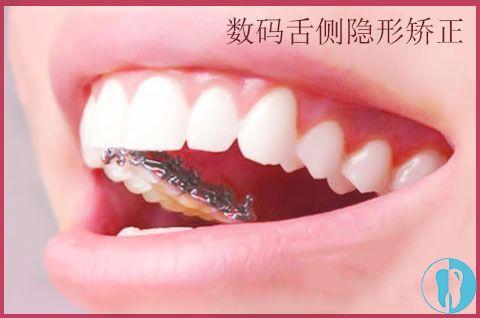 舌侧隐形矫正图示