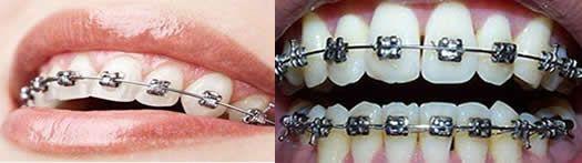 金属自锁托槽和传统牙套区别图
