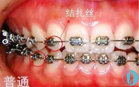 普通金属牙套