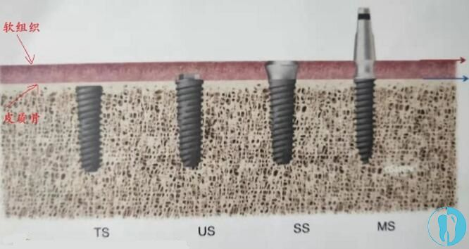 骨水平与软组织水平种植体的区别