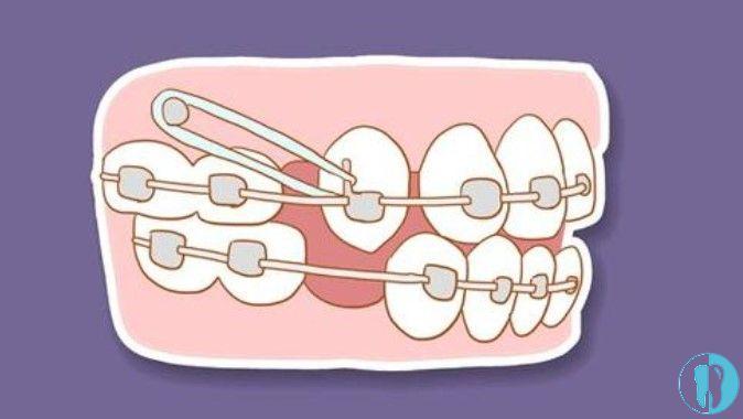 牙医自己为啥不矫正牙齿?是不是戴牙套整牙有后遗症?