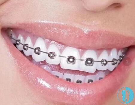 陶瓷自锁牙套_想要舒适矫牙,速看欧欧OBrace球面与传统方形自锁托槽的区别 ...