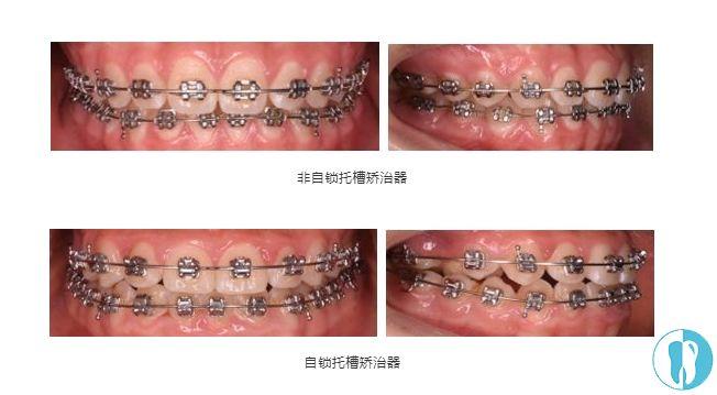 牙套自锁和非自锁图片_矫正牙套的种类那么多,隐形牙套和钢丝牙套价格差多少嘞 - 口腔 ...