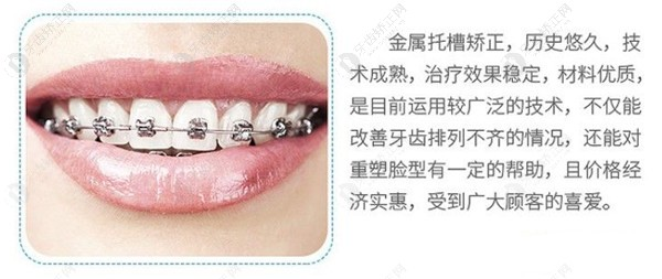 钢丝牙套Or隐形牙齿矫正器哪个更值得选择