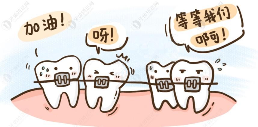 传统牙套和自锁牙套_深度解析:深覆合矫正戴隐形牙套和钢牙哪个效果好? - 口腔 ...