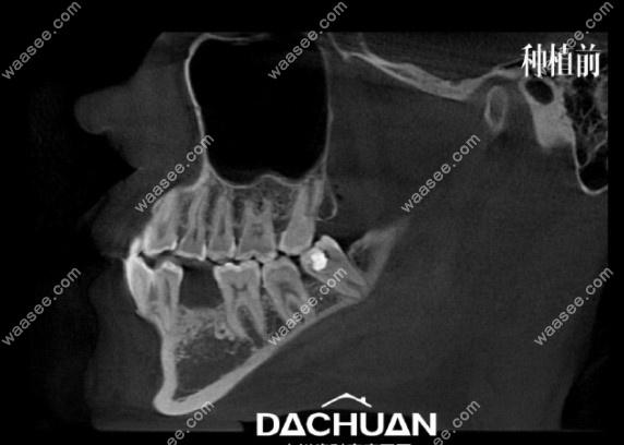 牙齿缺失种植前拍的CT照片
