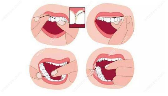 正确使用牙线