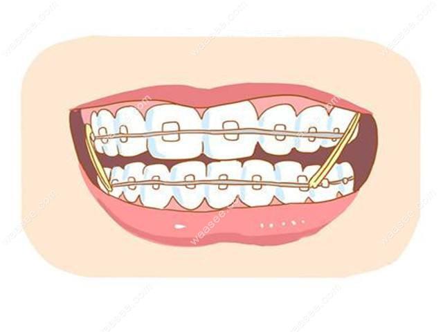 牙齿矫正戴牙套必须每个月复诊一次吗